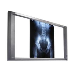 Röntgenfilmbetrachter